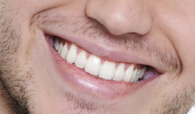 ديلى ميل: تنظيف الأسنان يقلل فرص الإصابة بسرطان القولون
