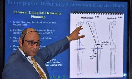 البطراوى يحاضر بمؤتمر العظام بجامعة عين شمس حول أحدث تقنيات إصلاح عظام الأطفال